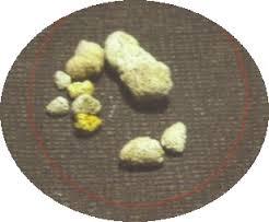 Pengobatan Untuk Penyakit Kencing Batu